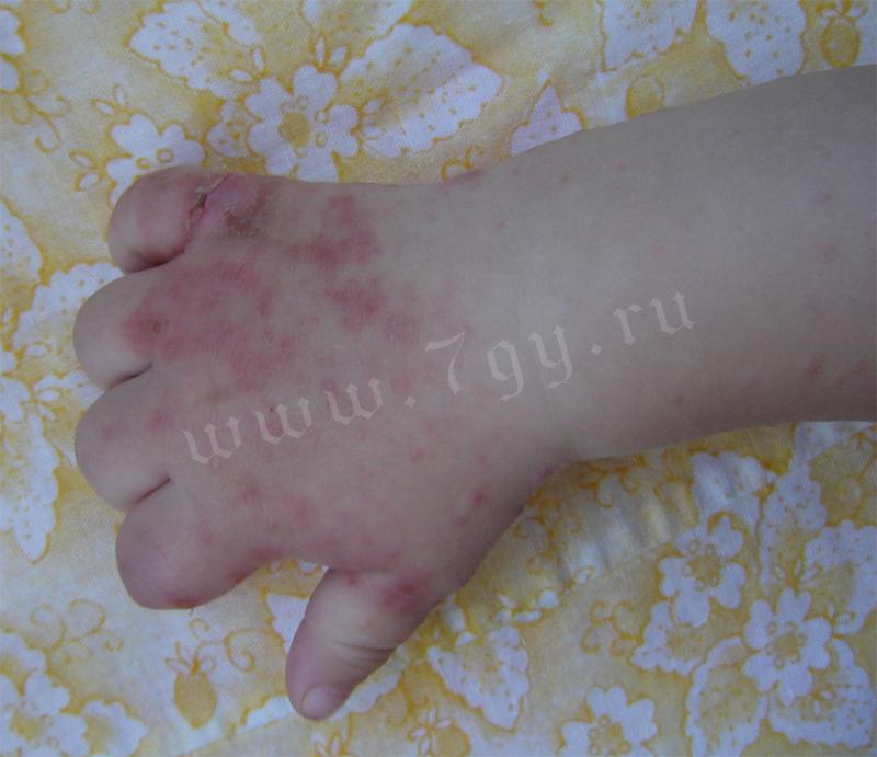 Физиопроцедуры при атопическом дерматите у детей