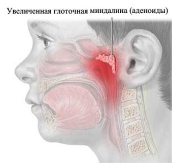 Лечение и симптомы аденоидов у ребенка