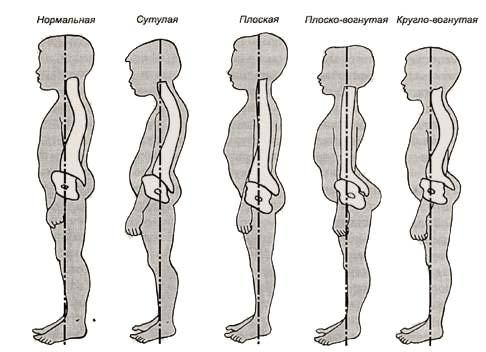 Комплекс упражнения на профилактику осанки