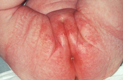как устранить запах чеснока изо рта быстро