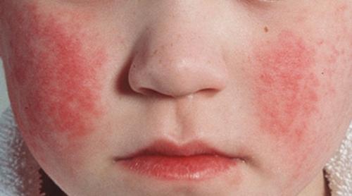 Сыпь при скарлатине (скарлатинозная маска)